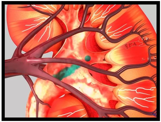 Kidney Image